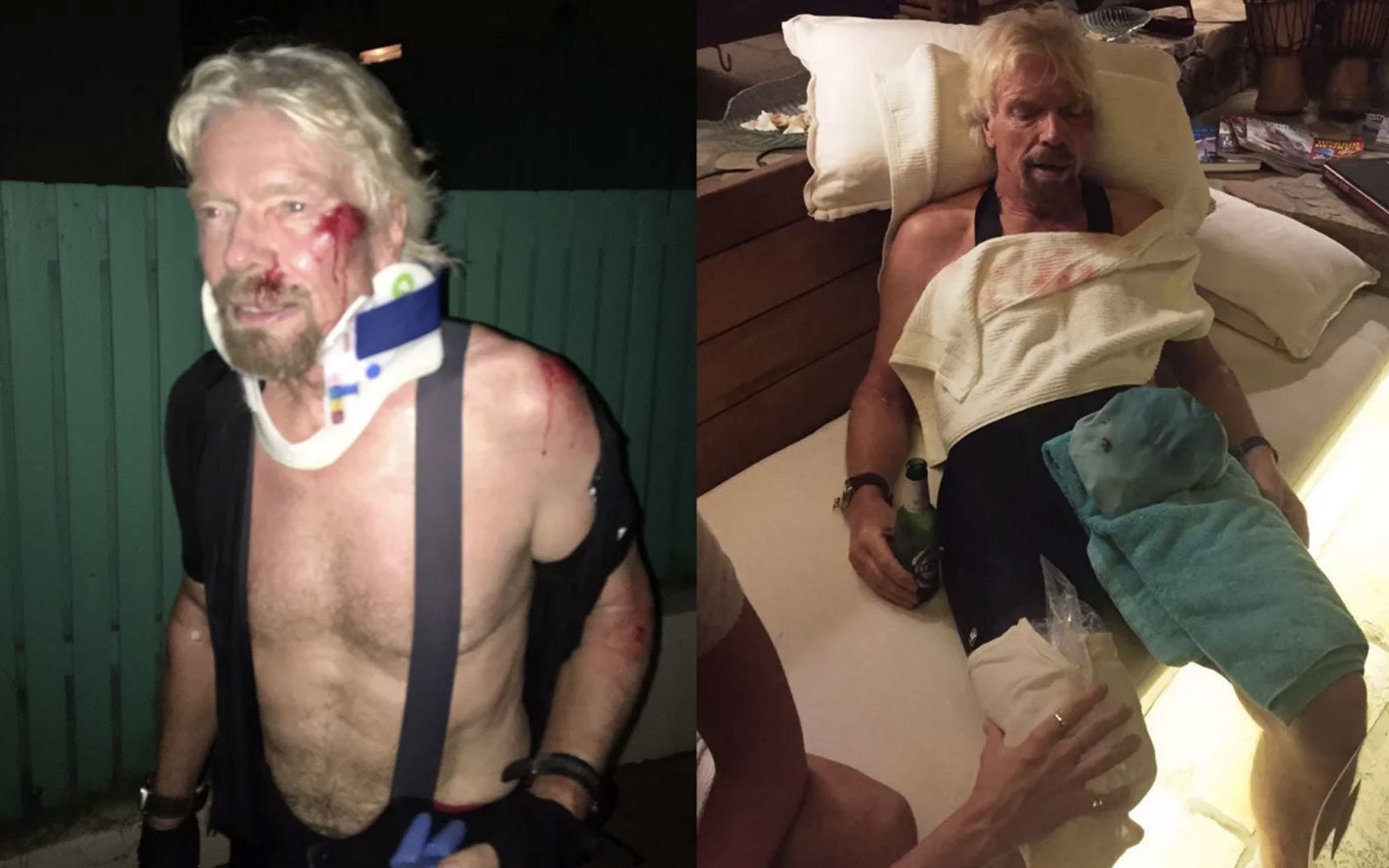 Richard Branson was injured in a fall off his bike.