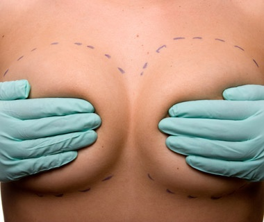 Cosmetic Surgery in Thailand